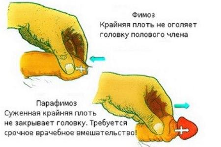 golova5.jpg